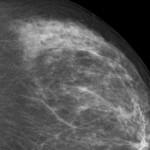 Mikrokalk in Mammographie
